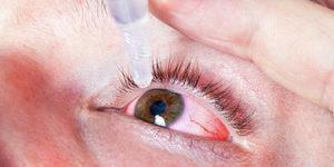 Сосудосуживающие капли для глаз - список лучших