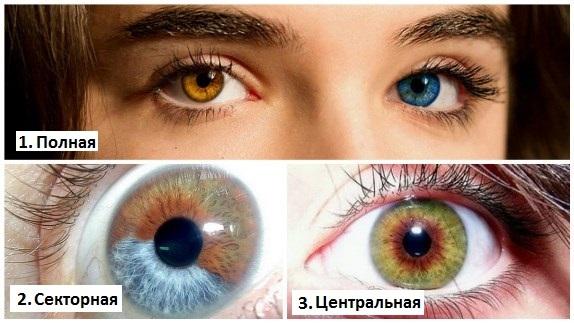 Гетерохромия глаз у людей - фото, виды, причины