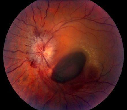 Болит правый глаз