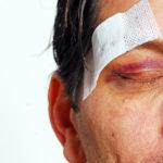 Жидкость в глазах - что это, причины, симптомы и лечение