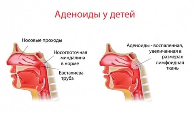 Лимфомиозот при отеках под глазами