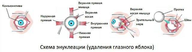 Ретинобластома - фото, причины, симптомы, лечение