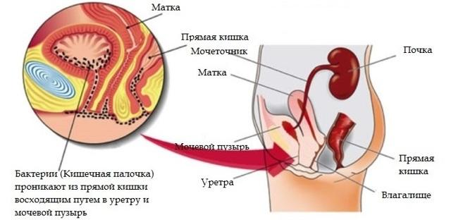 Эффективное лечение хронического цистита