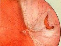 Отслоение роговицы глаза - симптомы, лечение, причины
