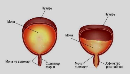 Остаток мочи в мочевом пузыре: норма, определение, лечение