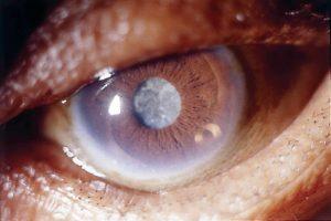 Гомеопатические глазные капли - список лучших, отзывы