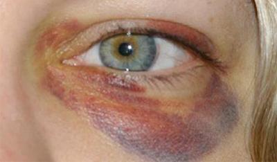 Анофтальм - причины, диагностика, лечение, последствия