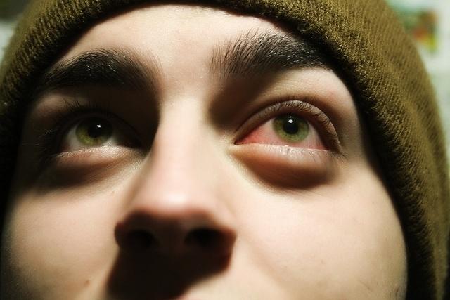Стреляет в глазу - резкая колющая боль