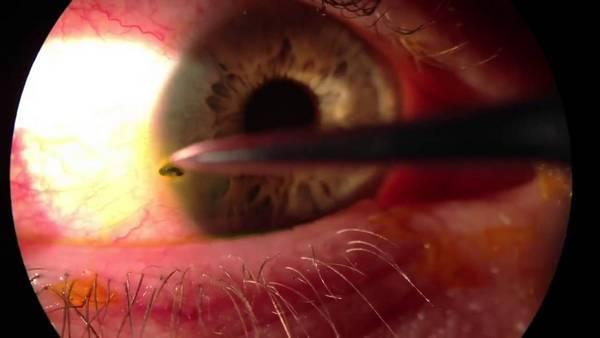 Окалину попала в глаз - как вытащить стружку