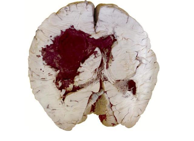 Анизокория - что это, причины, симптомы, лечение