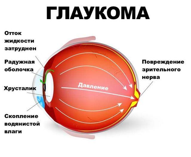 Один глаз не видит - положена ли инвалидность