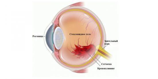 Инсульт глаза - причины, последствия, восстановление