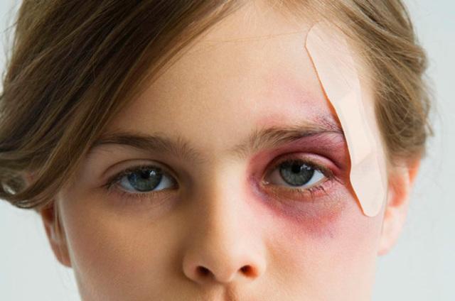 Глаз плохо видит после удара
