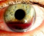 Гифема - что это, фото, лечение, симптомы, причины