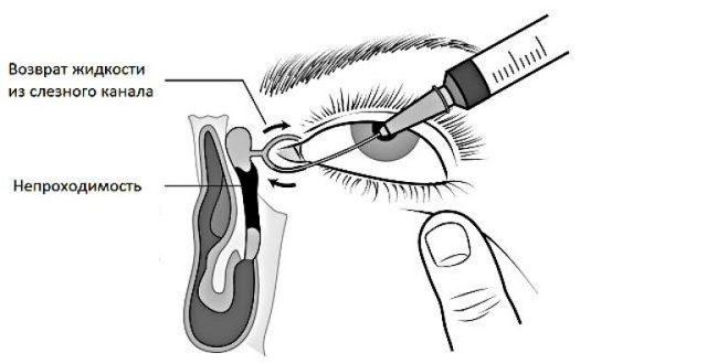 Непроходимость слезного канала - симптомы у взрослых