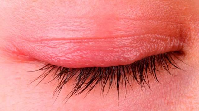 Мейбомиевы железы - что это, лечение закупорки, массаж