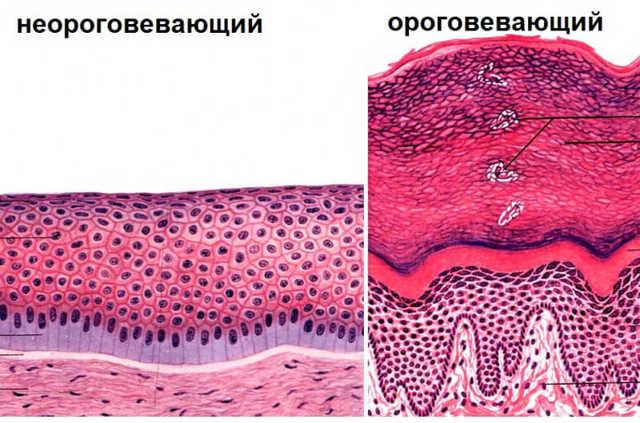 На что указывает высокое содержания эпителия в моче
