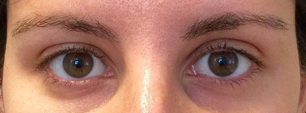 Впалые глаза - как исправить, причины проваливания