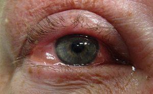 Лакрисифи капли глазные - инструкция, цена, отзывы