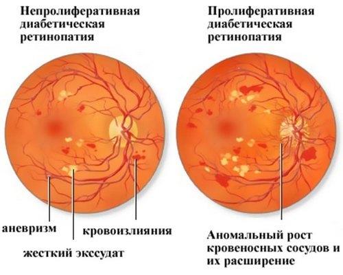 Ретинопатия - что это, причины, симптомы, лечение, диагностика, профилактика