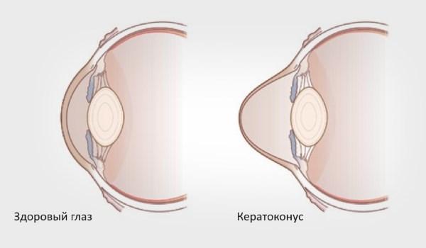 Кератоконус - что это, причины, симптомы и лечение
