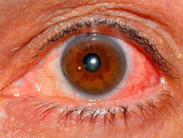 Склеры глаз - что это, анатомическое строение, функции