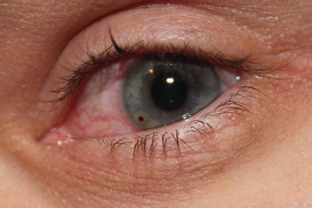 Блефароспазм - что это, фото, лечение, симптомы, причины