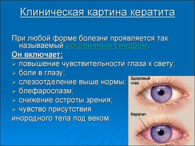 Глаз красный, опух и гноится - что делать, причины, лечение