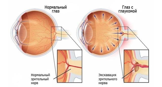Пелена перед глазами - что это, причины и лечение