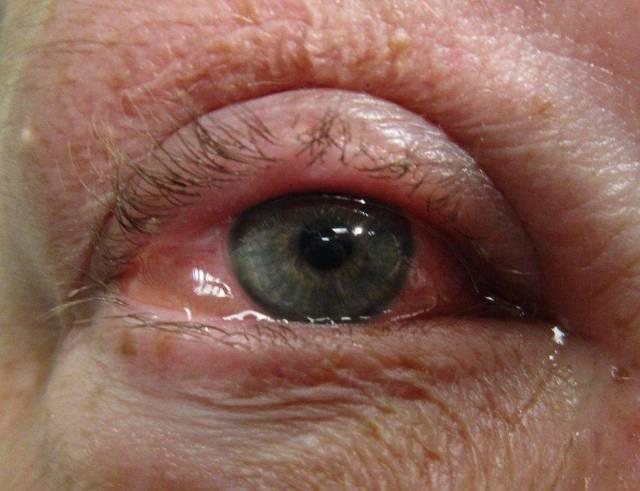Задитен капли глазные - инструкция, цена, отзывы