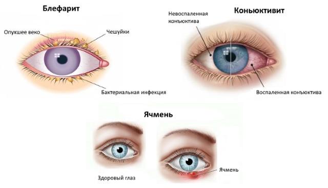 Леовит для глаз - инструкция, цена, отзывы