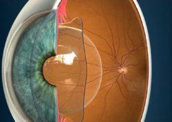 Артифакия глаза - что это, как проводят, преимущества, осложнения